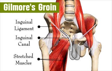 Sports hernia anatomy