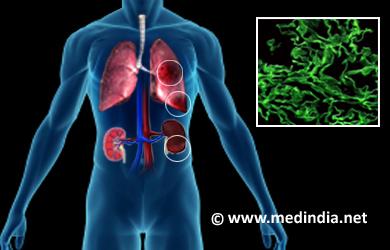 anti glomerular basement membrane disease anti gbm disease
