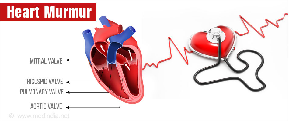 the causes diagnosis treatment and prevention of heart disease The treatment goals of atrial fibrillation (af or afib) start with a proper diagnosis  through an in-depth examination from a physician  if hyperthyroidism is the  cause of afib, treating the thyroid condition may be enough to.