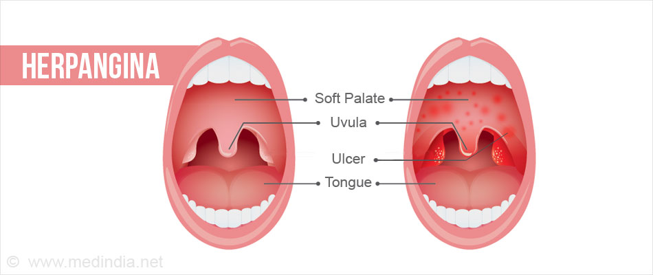 herpangina (painful mouth infection) - causes, symptoms, diagnosis, Skeleton