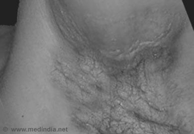 Acne Inversa Groin