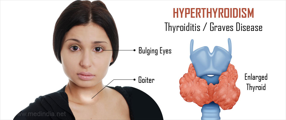 Hyperthyroidism Overactive Thyroid Causes Symptoms