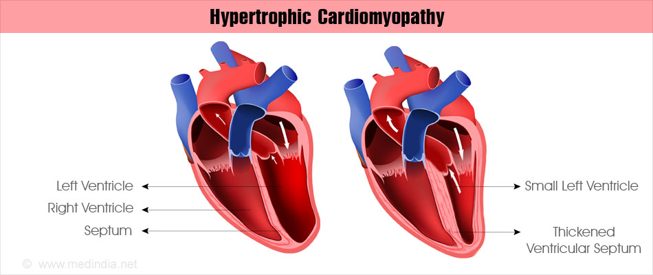 hypertrophic cardiomyopathy - causes, symptoms, diagnosis, Skeleton