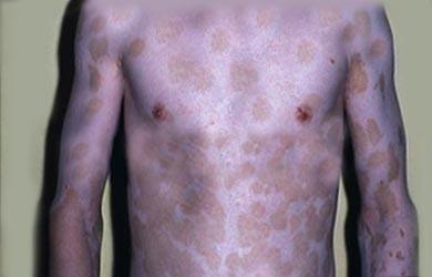Skin Pigment Disorders | Johns Hopkins Medicine Health Library