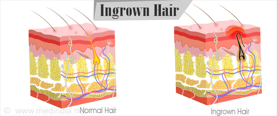 ingrown hair causes symptoms complications diagnosis treatment