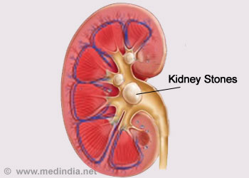 Kidney Stones Renal Stones Causes Symptoms Diagnosis