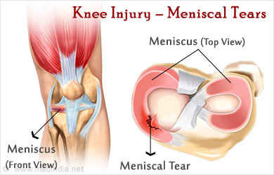 the common causes of the meniscus knee injury Over-stretching or tearing of the anterior cruciate ligament (acl) in the knee causes injury  a meniscus tear is among the most common knee injuries,.