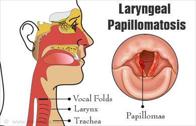 laryngeal papilloma hpv cancer de colon rocio jurado