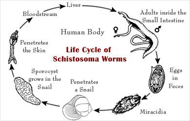 schistosomiasis usmle)