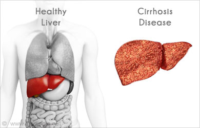 Current Treatments for Liver Cancer | Hepatoma ...