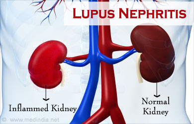lupus nephritis - causes, classification, symptoms, diagnosis, Skeleton