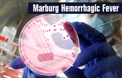 the marburg hemorrhagic fever description Marburg hemorrhagic fever is a very rare human disease however, when it does occur, it has the potential to spread to other people, especially health care staff and family members who care for.