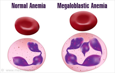 megaloblastic anemia - causes, symptoms, signs, diagnosis, Skeleton