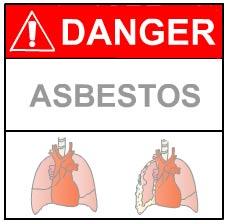 Asbestosis Symptoms Australia