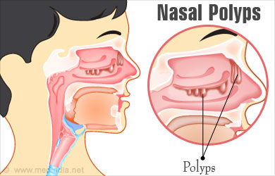 Sinus Polyps Natural Treatment