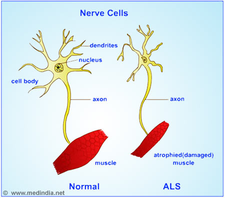an analysis of amyotrophic lateral sclerosis als Amyotrophic lateral sclerosis (als) is devastating neurodegenerative disease characterized by a progressive loss of motor neurons (mns) in motor cortex, brainstem and spinal cord which leads to progressive paralysis and death within the 3 to 5 years after diagnosis by respiratory failure about 10% of als cases are.