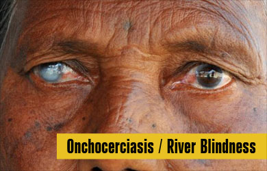 Onchocerciasis | River Blindness - Causes, Symptoms, Diagnosis ...