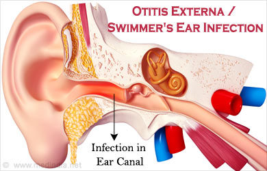 External links Symptoms of an adult ear infection human
