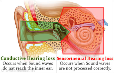 Conductive hearing loss treatment surgery interview