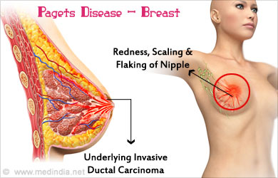 pagets disease and breast cancer