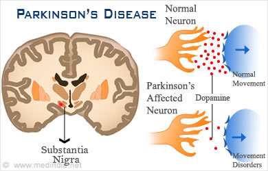 Parkinson S Disease Legacy Spine Amp Neurological Specialists
