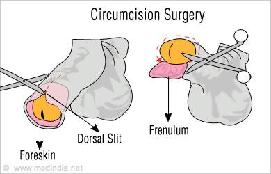 Penis slit