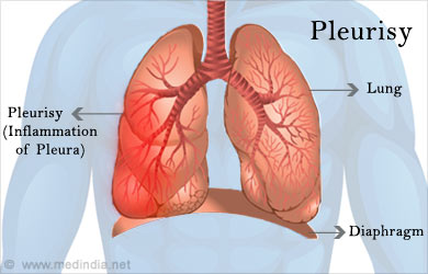 Pleurisy  Causes, Symptoms, Diagnosis, Treatment. Prohibition Signs Of Stroke. Wonderful Signs Of Stroke. Neurological Signs. Other Signs Of Stroke. Vehicular Signs Of Stroke. Psychiatric Signs Of Stroke. Hilum Signs. Mounted Signs Of Stroke