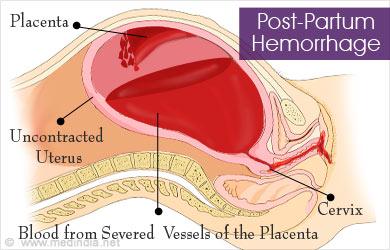 postpartum hemorrhage causes symptoms diagnosis treatment