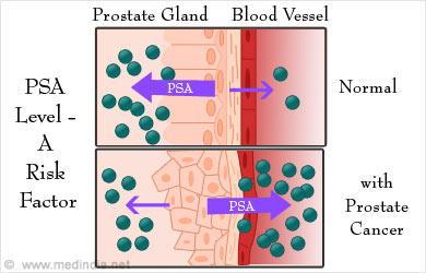 Radical prostatectomy specimen