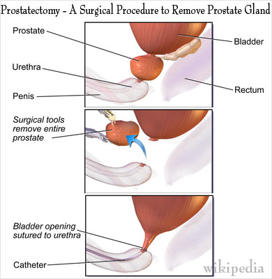 an introduction to the history of the prostate gland Introduction benign hyperplasia and carcinoma are the most common prostatic disorders and have an increasing importance in an ageing population inflammation and infection of the prostate (prostatitis) is a less common condition that occurs in a younger age group and is rather poorly defined clinically.