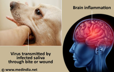 Cat Disease Transmission To Humans