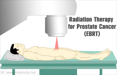 radiation treatment for prostate cancer success rate
