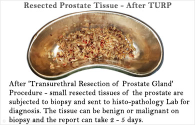 Resected Prostate Tissue - After TURP