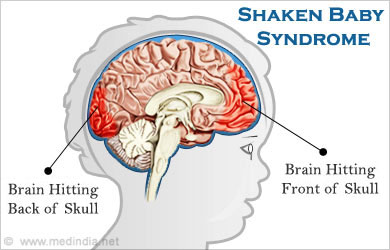 Image result for shaken baby syndrome