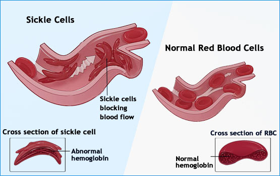 a study of symptoms diagnosis and treatment of sickle cell anemia People born with sickle cell disease inherit two abnormal sickle cell  the only approved medication for the treatment of sickle cell  anemia, fatigue, frequent.