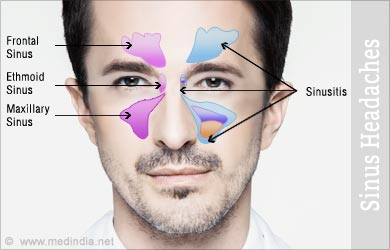 how to help a sinus headache