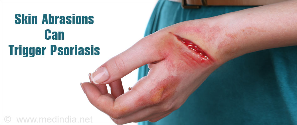 Psoriasis Cure With Homeopathy Fact Or Fiction