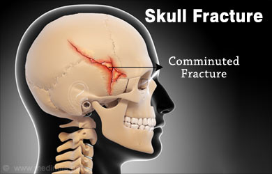 Skull Fractures – Types, Symptoms, Signs, Diagnosis ...