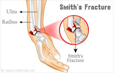 smith fracture garden spade - 390×250