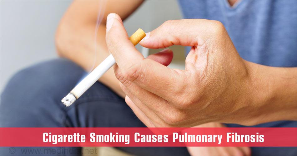 Pulmonary Fibrosis - Causes, Symptoms, Diagnosis, Treatment, Prognosis