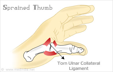of sprained thumb Symptoms