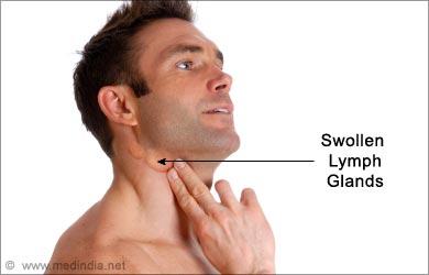 Sinus Headaches - Causes Symptoms Treatment