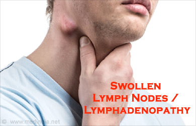 swollen lymph nodes | lymphadenopathy - causes, symptoms, Skeleton