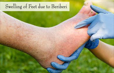 Berri berri