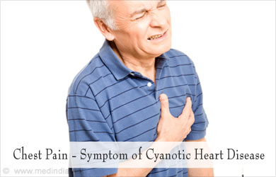 Cyanotic Heart Disease - Causes, Symptoms, Diagnosis, Treatment