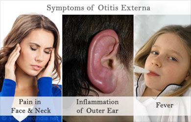 swimmer s ear symptoms prognosis and treatment Otitis externa or swimmers ear is frequently affected in children and  how is it  treated|causes, symptoms, prognosis of acute otitis media.