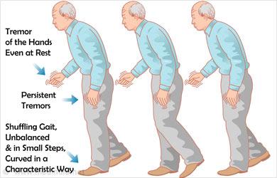 Parkinson's Disease: Types, Symptoms, Causes, Diagnosis And Treatment