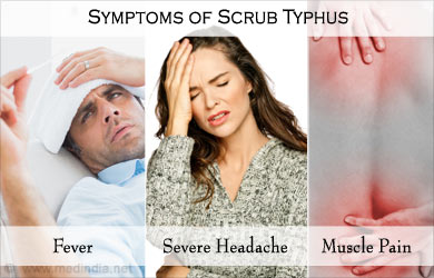 typhoid fever signs and symptoms pdf