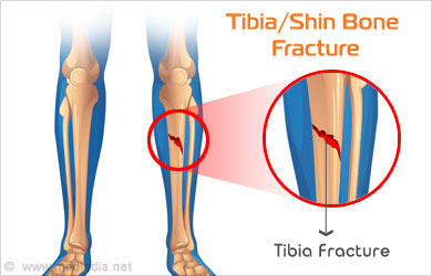Tibia (Shinbone) Shaft Fractures - Causes, Symptoms ...