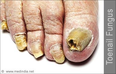 Toenail Fungus Onychomycosis Of